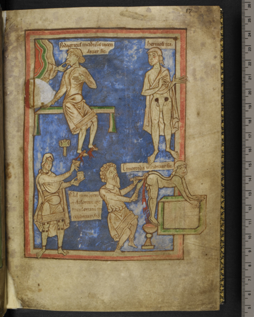 A page from a medieval manuscript, showing an illustration of medical and surgical procedures.