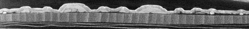 Cross-section from CT scan